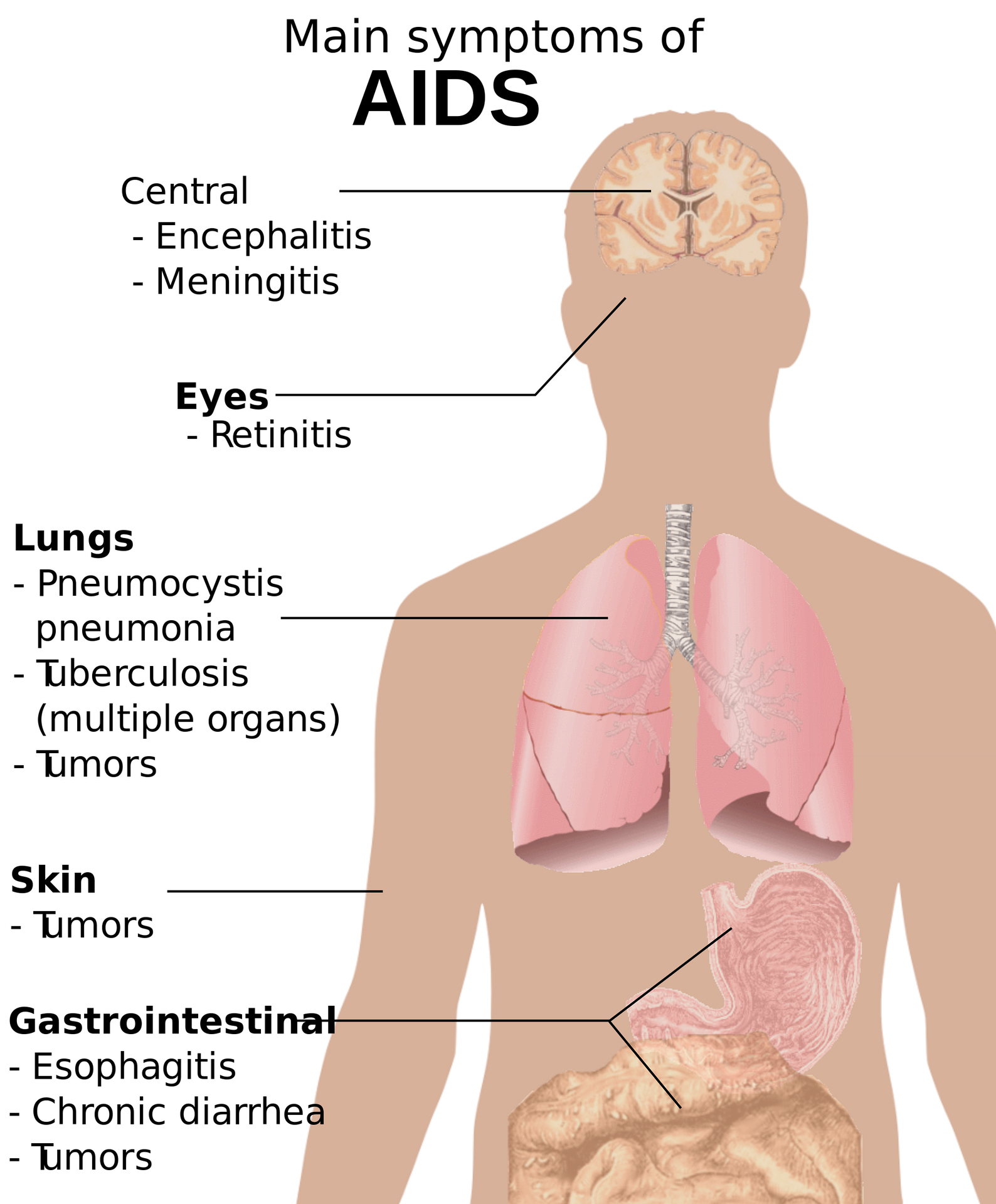 the main features of aids The human immunodeficiency virus (hiv) microbiological characteristics and virulence factors of which there are two main types.